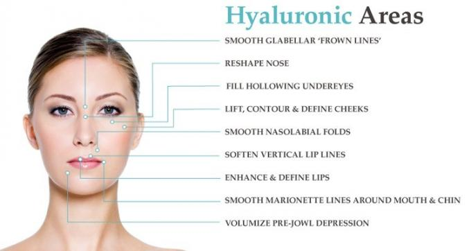 Cross Linked Hyaluronic Acid Filler Injections For Reduce Wrinkle / Enhance Lip
