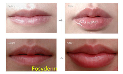 Cosmetic Beauty Products 2ml Dermal Lip Fillers Injections Long Lasting