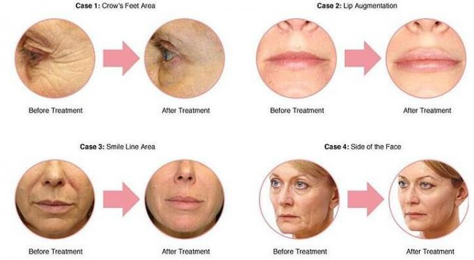 Cross Linked Injectable Dermal Fillers For Facial Contouring Long Lasting 3