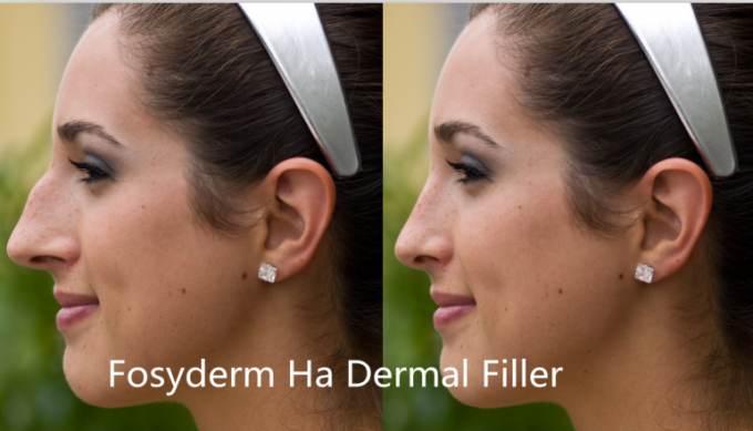 Injectable Cross Linked Hyaluronic Acid Dermal Fillers Skin Rejuvenation 2ml