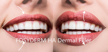 Hyaluronic Acid Lip Injections Fillers 1ml For Lips Filling CE ISO Certification