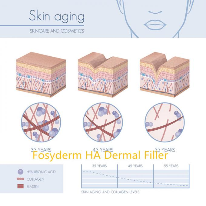 Safety 2ml Hyaluronic Acid Dermal Fillers For Wrinkles Anti Aging CE Certificate 3
