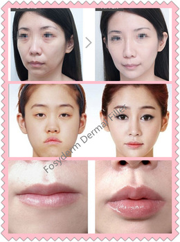 Cross Linked Sodium Hyaluronic Acid Nose Filler Injectable 2ml CE Certificate 7