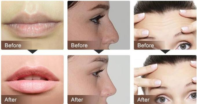 Beauty Products 1ml Sodium Hyaluronate Gel Injection Dermal Filler For Skin Care