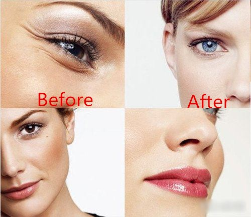 2ml HA Dermal Filler Lidocaine For Around Eye Wrinkles Remove No Side Effect
