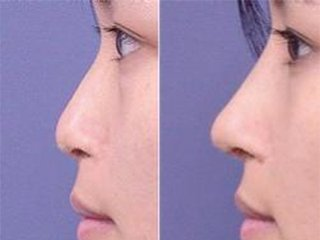 Deep Injection Hyaluronic Acid Dermal Fillers For Buttocks Enhancement 20ml
