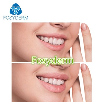 Fosyderm Hyaluronic Acid Forehead Wrinkles 1ml 2ml Injectable Filler Type