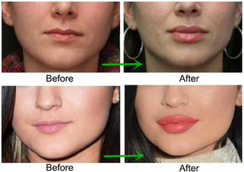 Fosyderm 2ml Deep Hyaluronic Acid Filler Injections For Shaping