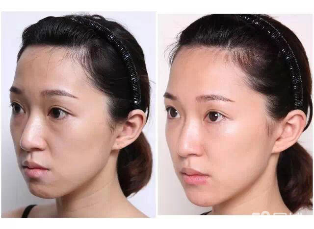 Colorless 2.5ml Meso Hyaluronic Acid Gel Injection Face HA Mesotherapy Solution