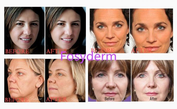 Fosyderm 1ml Hyaluronic Acid Lip Injections Derm Line Facial Fillers Lip Enhancement