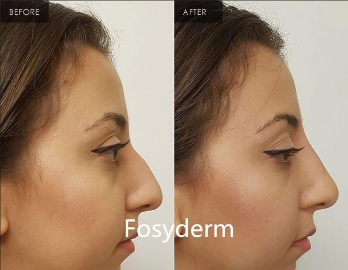 Fosyderm 2ml Face Use Hyaluronic Acid Injection Dermal Fillers For Anti Aging