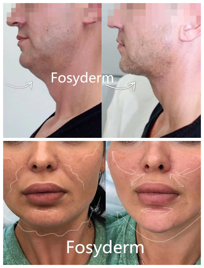Fosyderm 2ml Injectable Dermal Filler Hyaluronic Acid For Anti - Aging