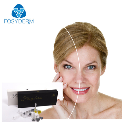 ISO Certified Hyaluronic Acid Dermal Filler , HA Dermal Fillers Facial Beauty supplier