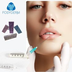 1ml Hyaluronic Acid Dermal Filler Wrinkle Facial Contour Fine Derm Deep Fosyderm For Lips supplier