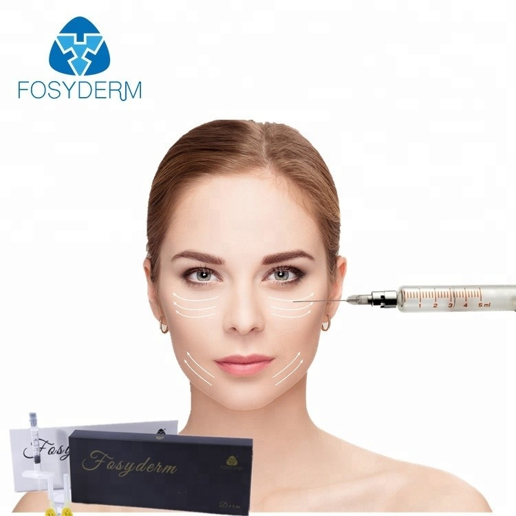 Hyaluronic Acid Gel Wrinkle Filler Injections For Removing Crows Feet 1ml