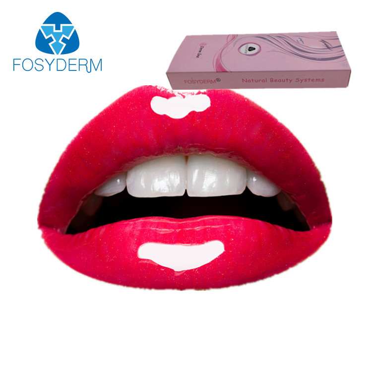 2ml Derm Hyaluronic Acid Filler Lidocaine , Lip Injections Fullness HA Gel With Lidocaine