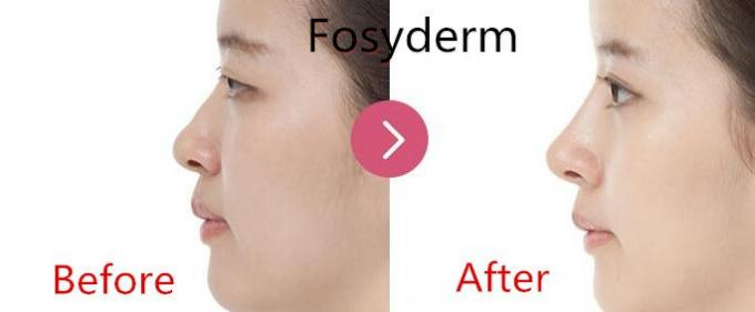 Fosyderm Hyaluronic Acid Injectable Filler 24mg Cosmetic Surgery Products